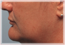 Exilis Skin Tightening Treatment New Orleans - Fine Lines, Wrinkles & Folds Case 10