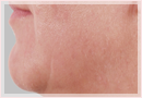 Exilis Skin Tightening Treatment New Orleans - Fine Lines, Wrinkles & Folds Case 11