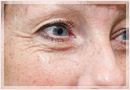 Exilis Skin Tightening Treatment New Orleans - Fine Lines, Wrinkles & Folds Case 14