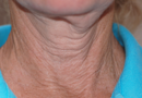 Exilis Skin Tightening Treatment New Orleans - Fine Lines, Wrinkles