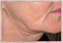 Exilis Skin Tightening Treatment New Orleans - Fine Lines, Wrinkles & Folds Case 18