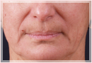 Exilis Skin Tightening Treatment New Orleans - Fine Lines, Wrinkles & Folds Case 02