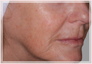 Exilis Skin Tightening Treatment New Orleans - Fine Lines, Wrinkles & Folds Case 03
