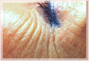Exilis Skin Tightening Treatment New Orleans - Fine Lines, Wrinkles & Folds Case 04