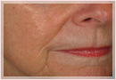 Exilis Skin Tightening Treatment New Orleans - Fine Lines, Wrinkles & Folds Case 05