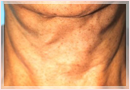 Exilis Skin Tightening Treatment New Orleans - Fine Lines, Wrinkles & Folds Case 06