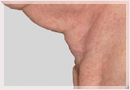 Exilis Skin Tightening Treatment New Orleans - Fine Lines, Wrinkles & Folds Case 07