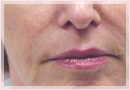 Exilis Skin Tightening Treatment New Orleans - Fine Lines, Wrinkles & Folds Case 08