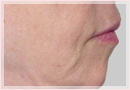 Exilis Skin Tightening Treatment New Orleans - Fine Lines, Wrinkles & Folds Case 09